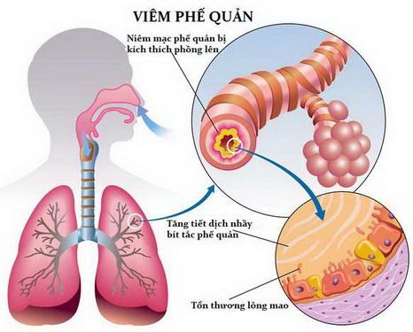 Một số bài thuốc trị viêm đường hô hấp trên
