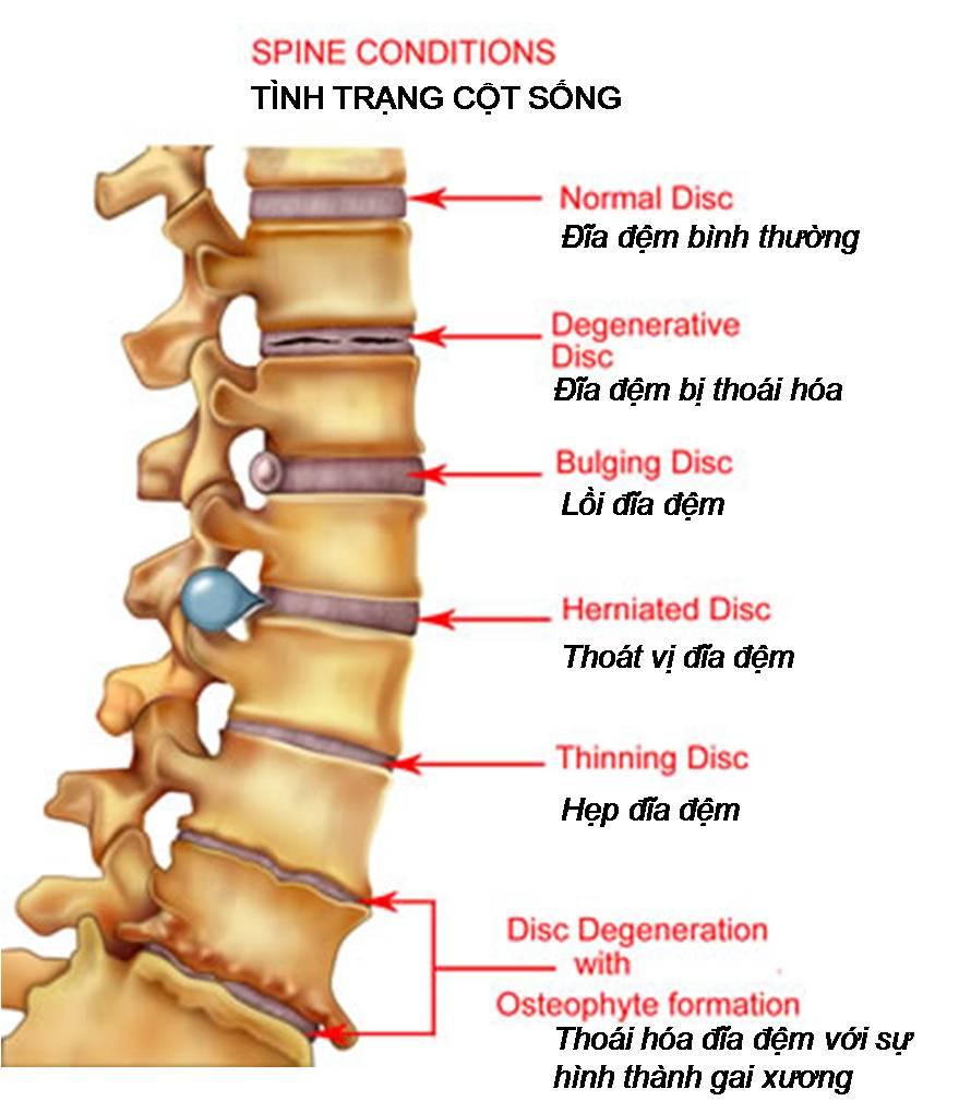 Phương pháp tác động cột sống trong việc chữa bệnh thoái cột sống
