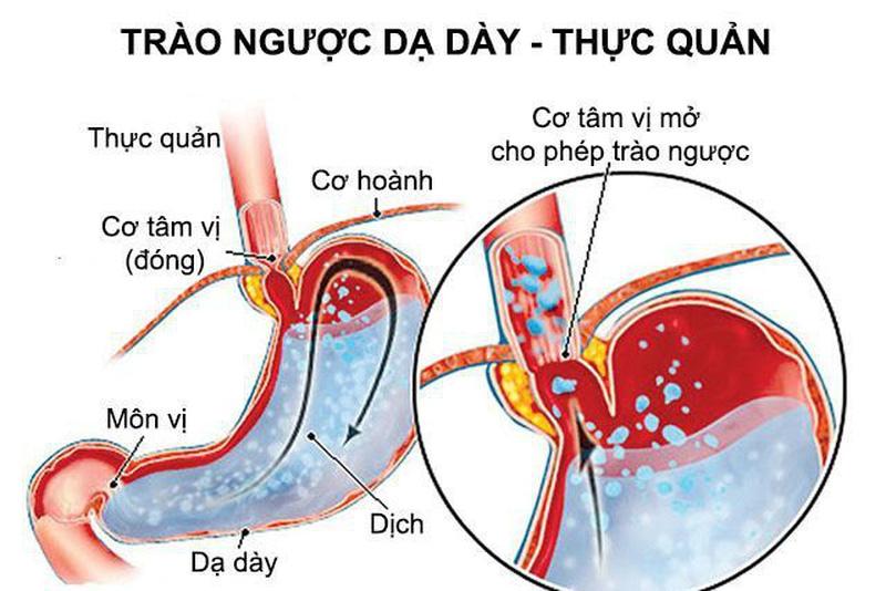 Bệnh trào ngược dạ dày - thực quản
